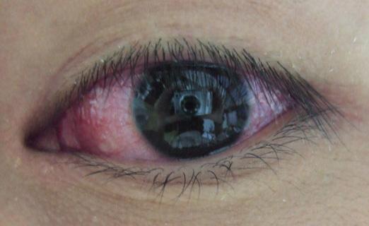 泡性角结膜炎