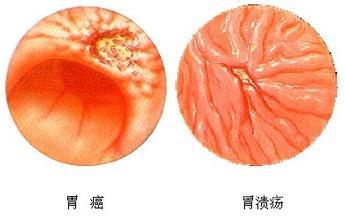 胃溃疡与胃癌的区分