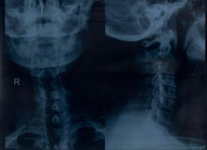 如何有效预防颈椎病