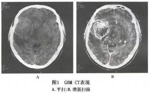 多形性成胶质细胞瘤详细描述 疾病库