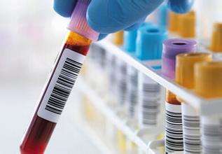哪些化验检查对胃癌诊断有帮助?
