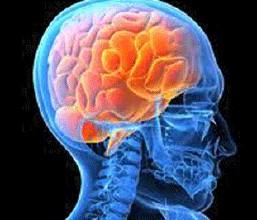 中医解析良性脑肿瘤发病病因