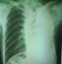上腔静脉位于上纵隔右前部,由左、右头臂静脉在有第1胸肋结合处后