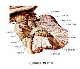 CT脑桥小脑三角低密度阴影