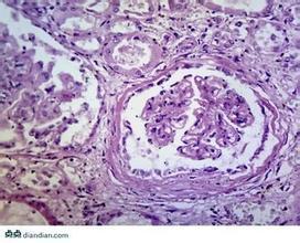 急进性肾炎的诊断要点