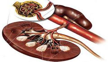 慢性肾炎的病理分型