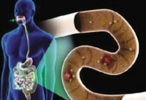 粪便微生物移植解决难治性溃疡性结肠炎