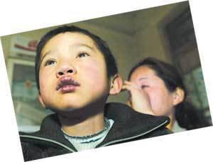 小儿口唇发紫要警惕先天性心脏病