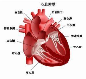 风湿热会变成风湿性心脏病