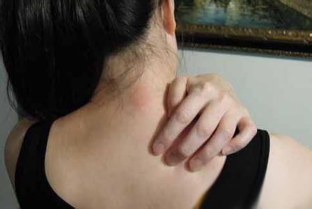 认清接触性皮炎症状,正确处理治疗接触性皮炎
