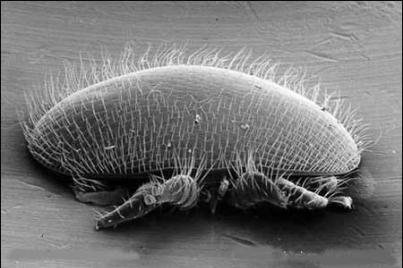 2种螨虫易引起螨虫性皮炎 如何预防