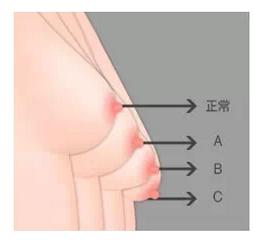 如何预防乳房松垂