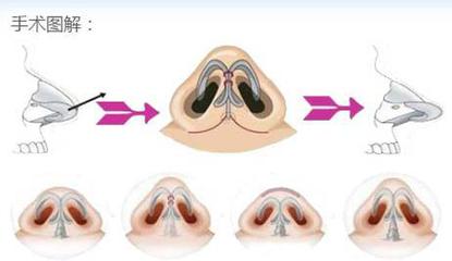 隆鼻术选择什么样的切口好?