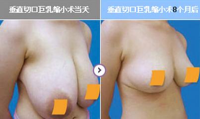 哪些因素可能会增加缩乳术的危险性?