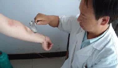 如何防治念珠菌病?