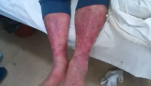 怎样治疗红皮病?