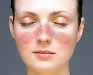引起红斑狼疮的常见原因有哪些?