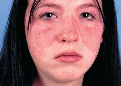 系统性红斑狼疮是怎么回事?