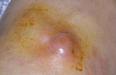 如何防治疱疹样皮炎?
