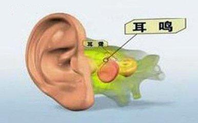什么是耳鸣?