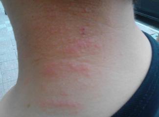 引起接触性皮炎常见的原因有哪些?