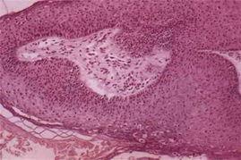 乳头,状瘤