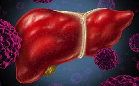 病毒性肝炎的并发症