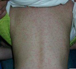 小儿麻疹有哪些并发症?