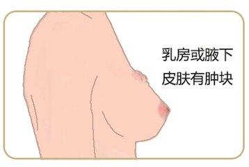 乳腺癌的症状有哪些?